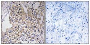 Immunohistochemistry (Formalin/PFA-fixed paraffin-embedded sections) - TNXB antibody (ab111270)