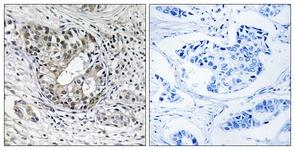 Immunohistochemistry (Formalin/PFA-fixed paraffin-embedded sections) - PNPT1 antibody (ab111276)