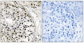 Immunohistochemistry (Formalin/PFA-fixed paraffin-embedded sections) - MNK1 antibody (ab111292)