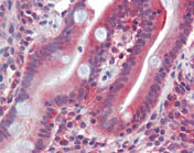 Immunohistochemistry (Formalin/PFA-fixed paraffin-embedded sections) - Glucose Transporter 5 GLUT5 antibody (ab111299)