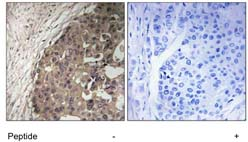 Immunohistochemistry (Formalin/PFA-fixed paraffin-embedded sections) - CSGALNACT1 antibody (ab111304)