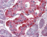 Immunohistochemistry (Formalin/PFA-fixed paraffin-embedded sections) - eIF4EBP2 antibody (ab111309)