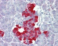 Immunohistochemistry (Formalin/PFA-fixed paraffin-embedded sections) - PDGF beta antibody (ab111310)