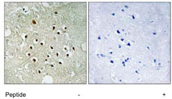Immunohistochemistry (Formalin/PFA-fixed paraffin-embedded sections) - RPS19BP1 antibody (ab111312)