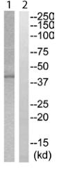Western blot - ZDHHC2 antibody (ab111337)