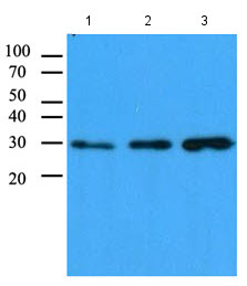 Western blot - CBR1 antibody [4E12] (ab111347)