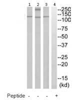 Western blot - TIE1 antibody (ab111354)