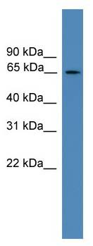 Western blot - TBC1D19 antibody (ab111359)