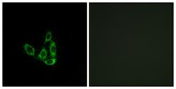 Immunocytochemistry/ Immunofluorescence - GCNT3 antibody (ab111371)