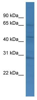 Western blot - TMCO4 antibody (ab111375)