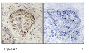 Immunohistochemistry (Formalin/PFA-fixed paraffin-embedded sections) - CENTB1 (phospho S554) antibody (ab111378)