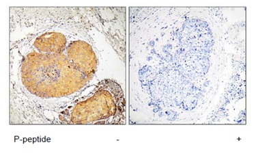 Immunohistochemistry (Formalin/PFA-fixed paraffin-embedded sections) - FADD (phospho S191) antibody (ab111379)
