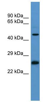 Western blot - RAB8B antibody (ab111395)
