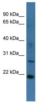 Western blot - STARD4 antibody (ab111402)