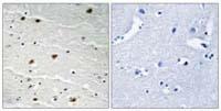 Immunohistochemistry (Formalin/PFA-fixed paraffin-embedded sections) - AKT1/2/3 (phospho Y315 + Y316 + Y312) antibody (ab111414)