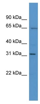 Western blot - HOXC12 antibody (ab111418)