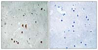 Immunohistochemistry (Formalin/PFA-fixed paraffin-embedded sections) - Anti-CNOT2 (phospho S101) antibody (ab111423)