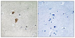 Immunohistochemistry (Formalin/PFA-fixed paraffin-embedded sections) - HSF1 (phospho T142) antibody (ab111425)