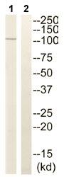 Western blot - JIK antibody (ab111426)