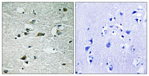 Immunohistochemistry (Formalin/PFA-fixed paraffin-embedded sections) - Casein kinase I isoforms gamma 1+2+3 (phospho Y263) antibody (ab111431)