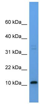 Western blot - CYYR1 antibody (ab111432)