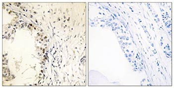 Immunohistochemistry (Formalin/PFA-fixed paraffin-embedded sections) - MNK1 (phospho T250) antibody (ab111434)