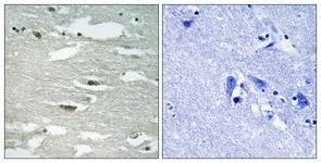 Immunohistochemistry (Formalin/PFA-fixed paraffin-embedded sections) - Integrin linked ILK (phospho S246) antibody (ab111435)