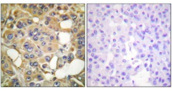 Immunohistochemistry (Formalin/PFA-fixed paraffin-embedded sections) - MARK 1+2+3+4 (phospho T215) antibody (ab111437)