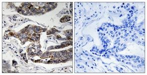 Immunohistochemistry (Formalin/PFA-fixed paraffin-embedded sections) - Girdin (phospho S1417) antibody (ab111440)
