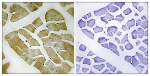 Immunohistochemistry (Formalin/PFA-fixed paraffin-embedded sections) - MYH4 antibody (ab111442)