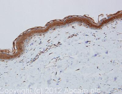 Immunohistochemistry (Formalin/PFA-fixed paraffin-embedded sections) - Anti-Cytokeratin 1 antibody (ab111471)