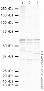 Western blot - Anti-Cytokeratin 1 antibody (ab111471)