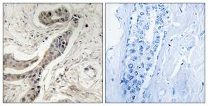 Immunohistochemistry (Formalin/PFA-fixed paraffin-embedded sections) - Anti-Bcl-XL (phospho T115) antibody (ab111477)