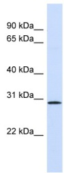 Western blot - FGF14 antibody (ab111481)