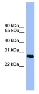 Western blot - C1orf216 antibody (ab111484)