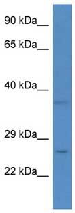 Western blot - CHCHD6 antibody (ab111502)