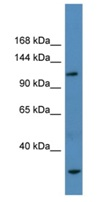 Western blot - HPS2 antibody (ab111506)