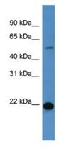 Western blot - CEACAM3 antibody (ab111510)
