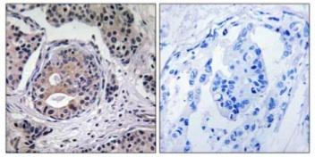 Immunohistochemistry (Formalin/PFA-fixed paraffin-embedded sections) - EEF2K (phospho S359) antibody (ab111511)