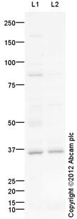 Western blot - Anti-Sprouty 1 antibody (ab111523)