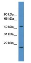 Western blot - SCCPDH antibody (ab111528)