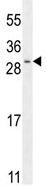 Western blot - SHISA3 antibody (ab111533)