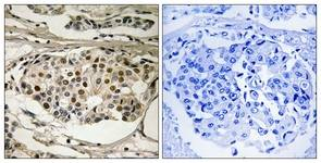 Immunohistochemistry (Formalin/PFA-fixed paraffin-embedded sections) - Anti-NF-kB p65 (phospho S281) antibody (ab111546)