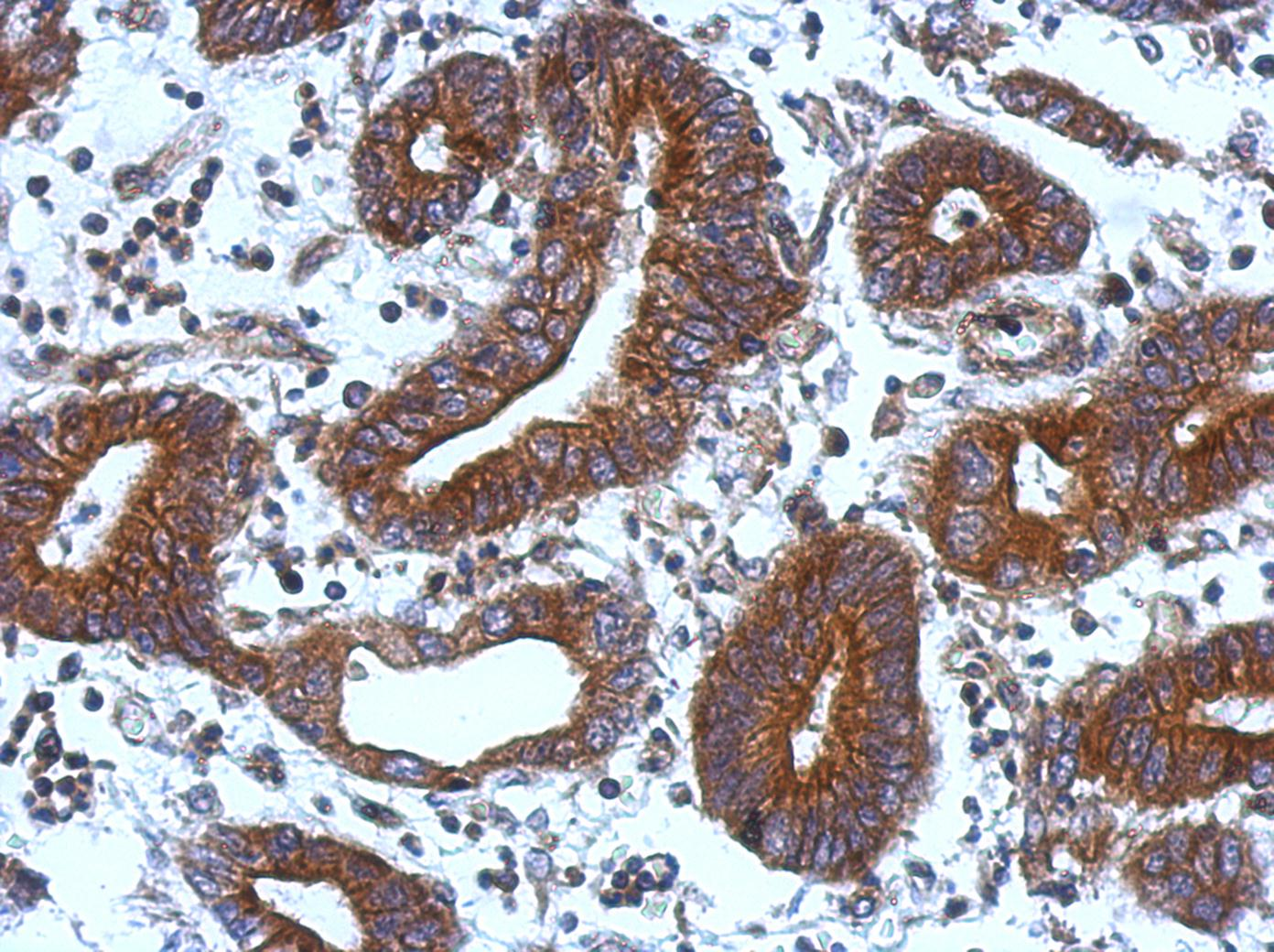 Immunohistochemistry (Formalin/PFA-fixed paraffin-embedded sections) - TIE1 antibody (ab111547)