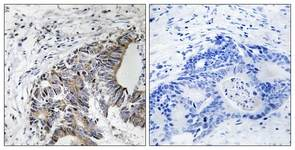 Immunohistochemistry (Formalin/PFA-fixed paraffin-embedded sections) - FHIT (phospho Y114) antibody (ab111557)