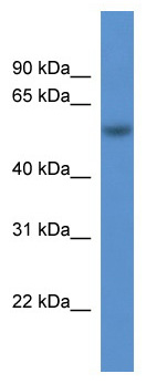 Western blot - ROD1 antibody (ab111563)