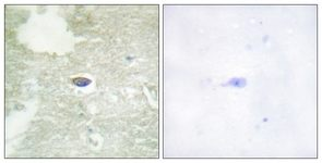 Immunohistochemistry (Formalin/PFA-fixed paraffin-embedded sections) - TGF beta Receptor II (phospho S225/250) antibody (ab111564)
