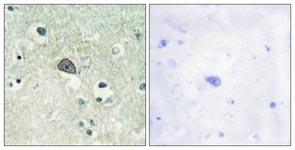 Immunohistochemistry (Formalin/PFA-fixed paraffin-embedded sections) - NMDAR1 (phospho S890) antibody (ab111566)
