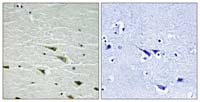 Immunohistochemistry (Formalin/PFA-fixed paraffin-embedded sections) - TrkA (phospho Y757) antibody (ab111581)