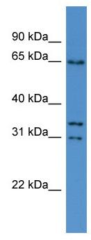 Western blot - CPNE5 antibody (ab111583)
